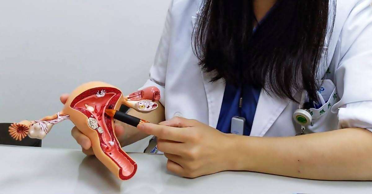 婦女癌症它最凶險,連「護理師」都會忽略的卵巢癌!-台中榮總