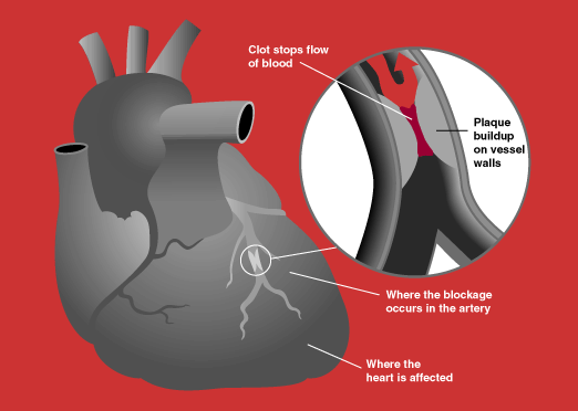 「零顯影劑冠狀動脈支架置放手術」保護殘存腎功能-台大醫院新竹分院