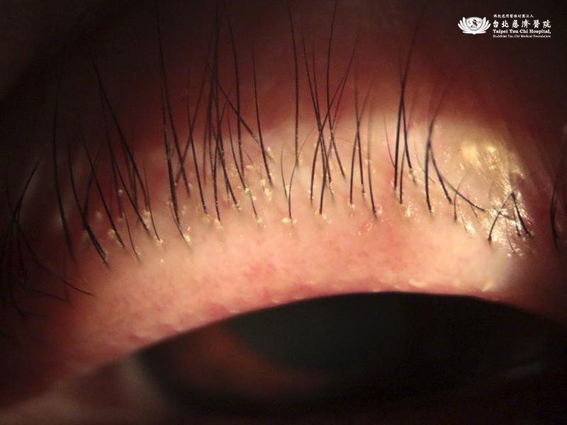 睡醒眼睛都是白屑...以為是眼屎,竟是睫毛「藏滿寄生蟲」-毛囊炎