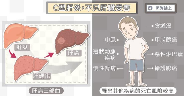 C肝新藥安全、便利且健保給付 保護肝臟要及時,避免人生變黑白-C型肝炎