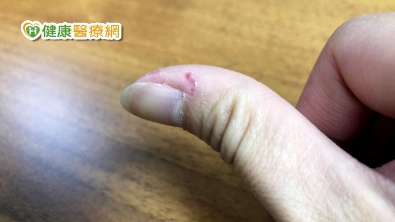 指甲旁邊倒刺 居然跟新冠疫情有關?-指緣油