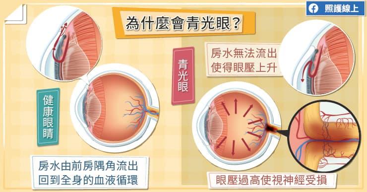 【名醫專訪】睡一覺就失明!? 一次了解青光眼症狀、治療與檢查-水晶體